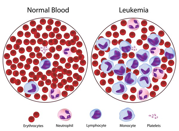 Leukemia drug found potentially effective for deadly brain cancer patients
