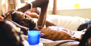 How 18 Nigerians die of Tuberculosis hourly