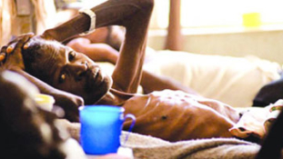 How 18 Nigerians die of Tuberculosis hourly