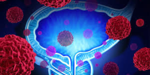 Google AI Centre to develop solutions for pancreatic cancer