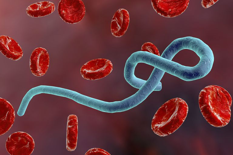 Nigeria capable of handling Ebola case – Expert