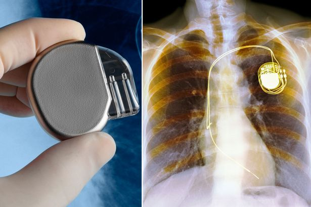 Scientists develop medical device to harvest heartbeat energy